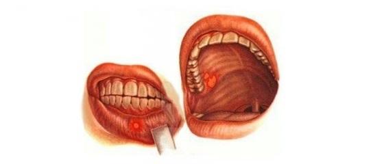 Химический ожог рта