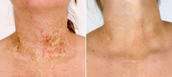 Пересадка кожи после ожога - до и после