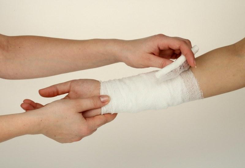 Перевязки после пересадки кожи