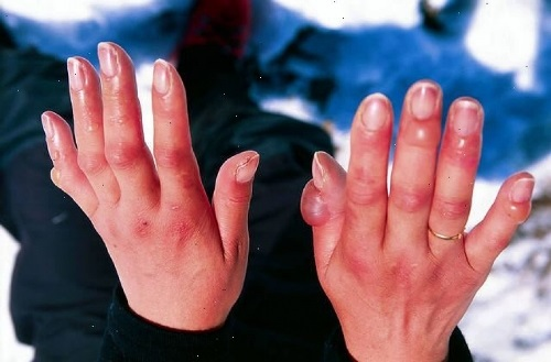 Ожог пальцев