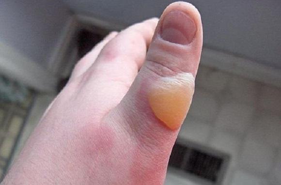 Волдырь на пальце после ожога