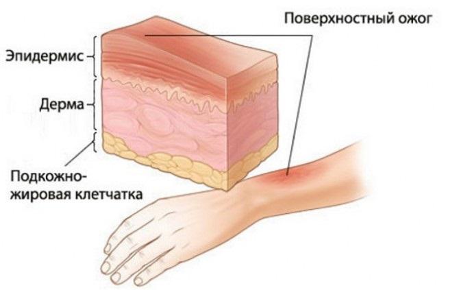 Глубина поражения тканей при ожогах