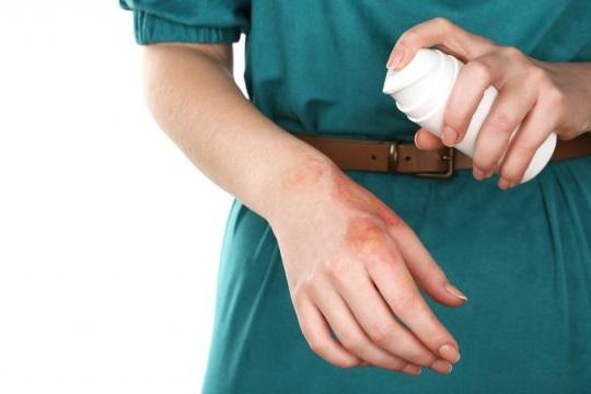 Нанесение антибиотика на ожог