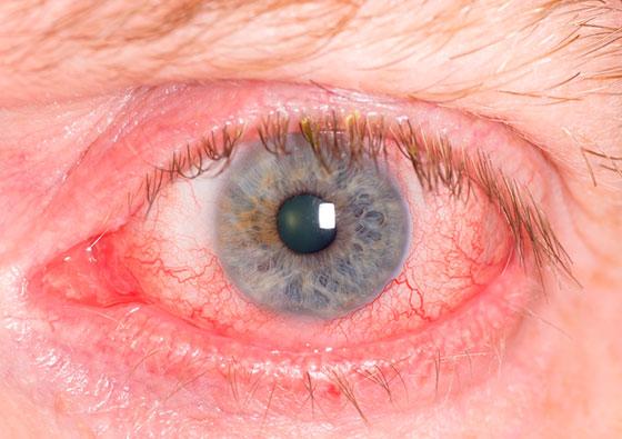 Ожог глаза химического происхождения