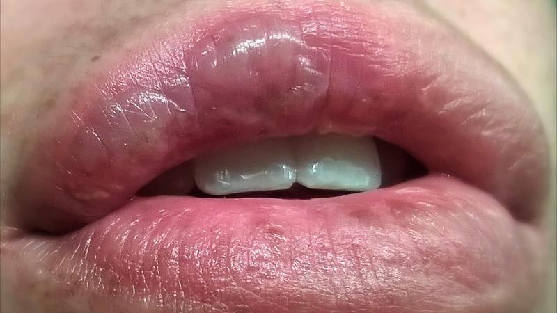 Ожог на губе