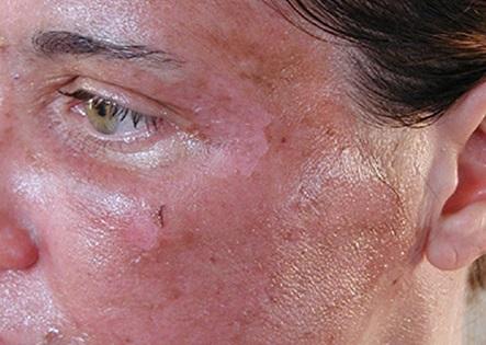 Ожог на лице после салициловой кислоты
