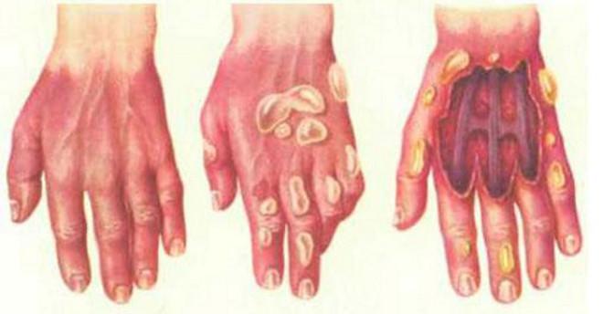 Поражение кожи различных стадий серной кислотой