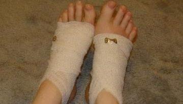 Ожог ноги