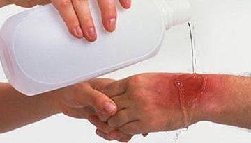 Чем убрать красноту после ожога