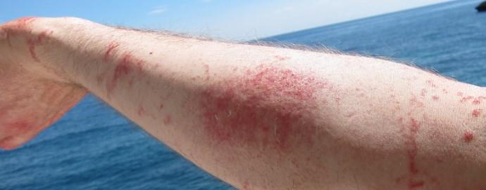 Красные пятна на коже у взрх ией - виды высыпаний