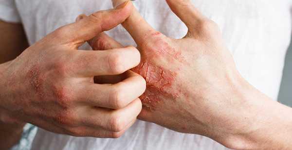 Аллергия на руках