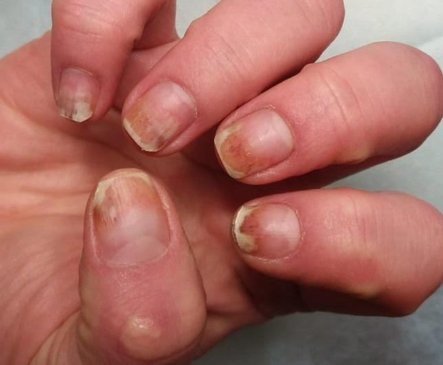 Так выглядит ожог ногтей